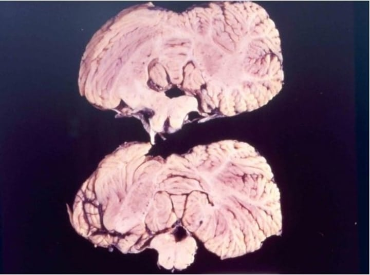 Kuru brain disease