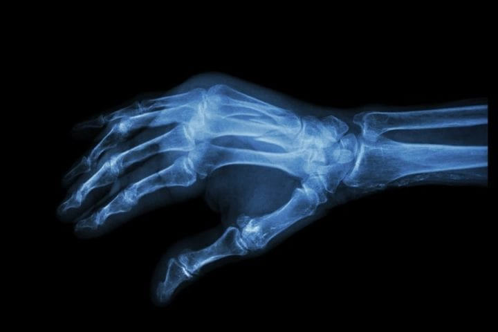 a hand looked at through x-ray