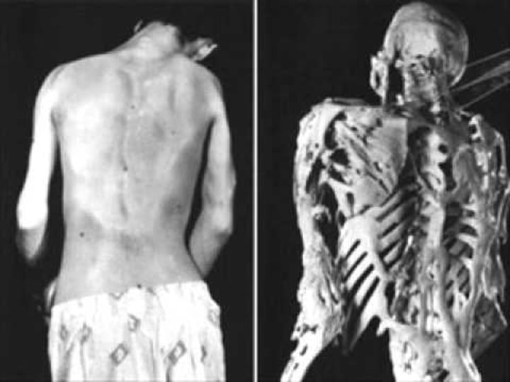 living-statue-disease-mystery