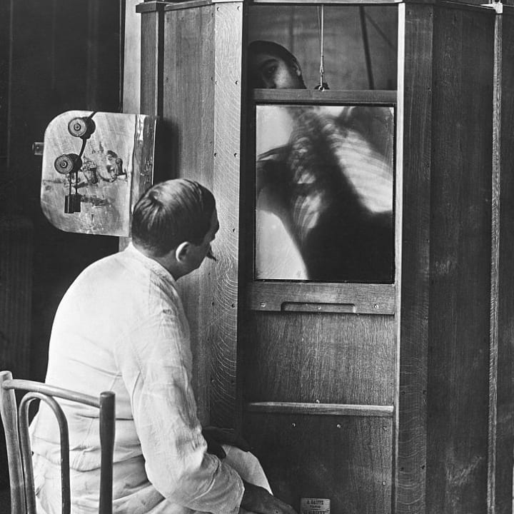 A doctor uses a fluoroscope, an early form of x-ray machine which allowed for direct examination of a person's insides. Because the exposure to the x-ray source was nearly constant, the use of fluoroscope was discontinued as being too hazardous to health.